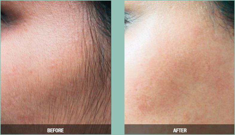 facial hair removal pocatello